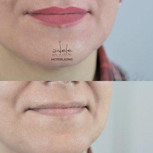 Micropigmentarea Buze cu efect de marire prin colorare - poza este realizata imediat dupa procedura . Buzele se vor desumfla in urmatoarele zile si dupa caderea cojitelor va ramane o culoare naturala, cu cel putin 30- 40 % mai deschisa .