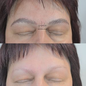 Microblading Sprancene Alopecie Totala, Micropigmentare fir cu fir
